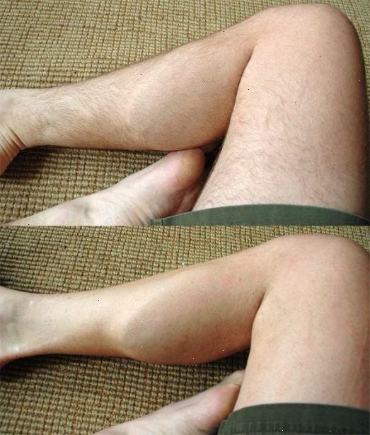 raka benen tips