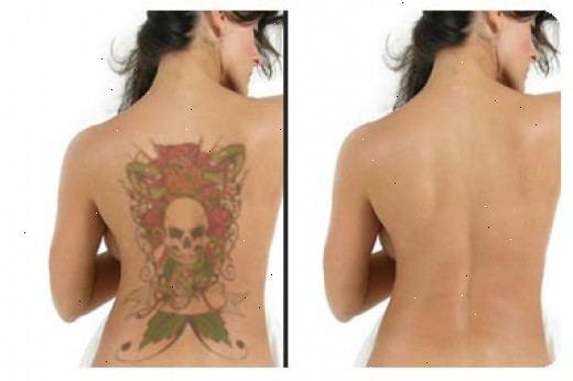 ta bort tatuering hemma