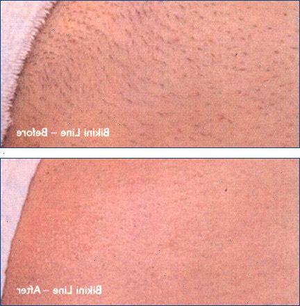 brasiliansk vaxning före och efter